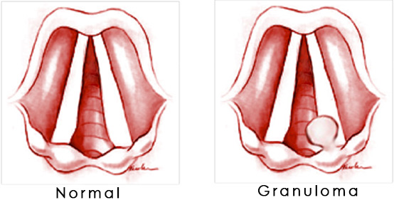 vocal granuloma