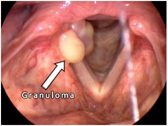 Granuloma
